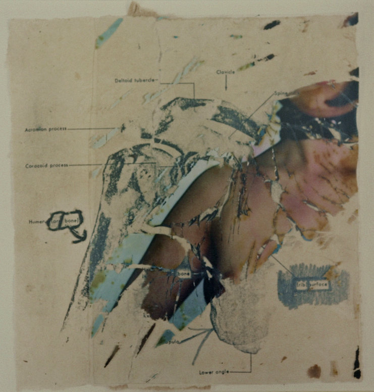 Anatomical Self Portraits - instant film destruction